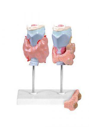 Заболевания щитовидной железы. 4 части. Размер натуральный