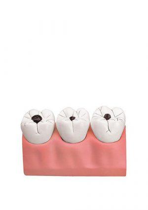 Модель стоматологической патологии (кариес)