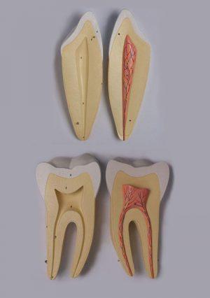 Патологии зубов. Увеличение в 4 раза