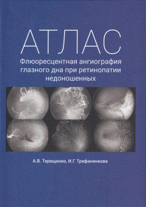 Атлас. Флюоресцентная ангиография глазного дна при ретинопатии недоношенных