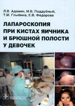 Лапароскопия при кистах яичника и брюшной полости у девочек