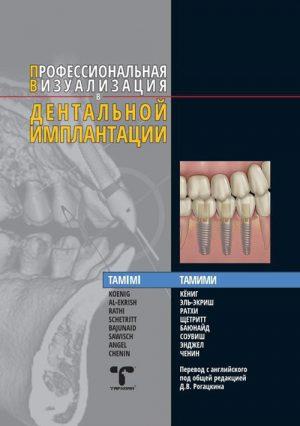 Профессиональная визуализация в дентальной имплантации