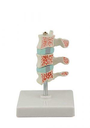 Распространенный остеопороз, в натуральную величины, материал -пластик