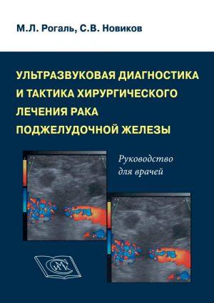 Ультразвуковая диагностика и тактика хирургического лечения рака поджелудочной железы. Руководство