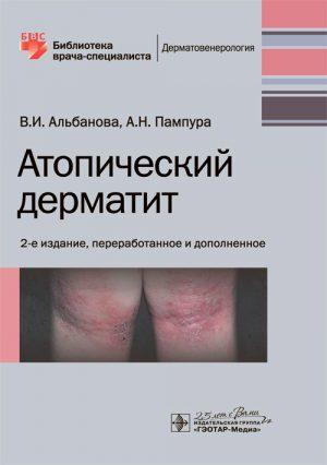 Атопический дерматит. Библиотека врача-специалиста