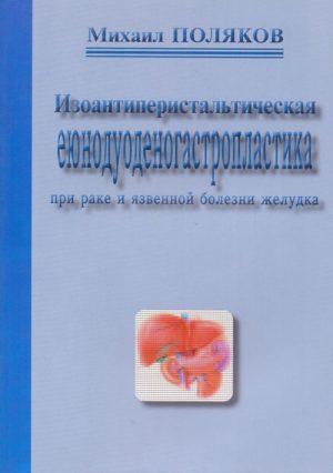 Изоантиперистальтическая еюнодуоденогастропластика при раке и язвенной болезни желудка