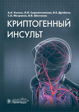 Криптогенный инсульт. Руководство