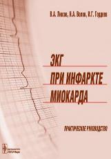 ЭКГ при инфаркте миокарда. Атлас