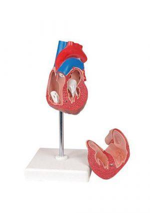 Модель гипертрофии сердца, 2 части, на подставке