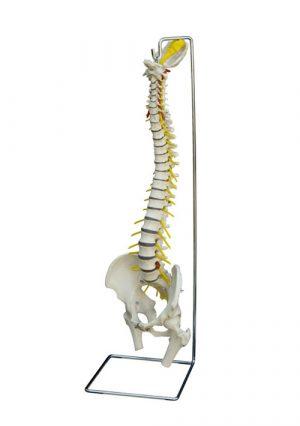 Модель позвоночника с грыжей диска, с подставкой, без головок бедренных костей