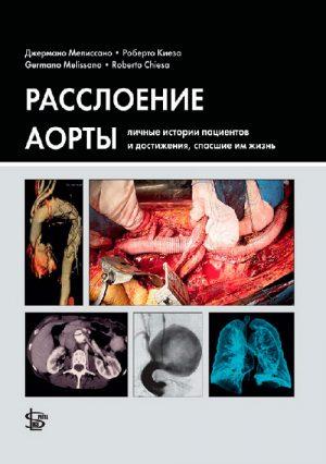 Расслоение аорты: личные истории пациентов и достижения, спасшие им жизнь