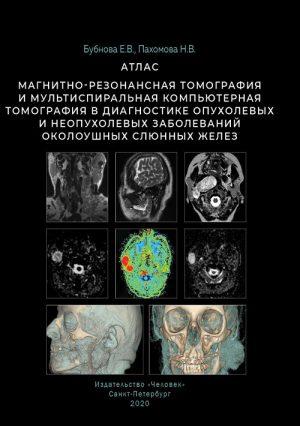 Магнитно-резонансная томография и мультиспиральная компьютерная томография в диагностике опухолевых и неопухолевых заболеваний околоушных слюнных желез. Атлас