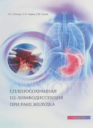 Спленосохранная D2-лимфодиссекция при раке желудка