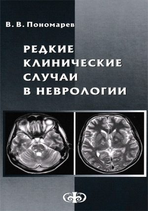 Редкие клинические случаи в неврологии. Случаи из практики. Руководство