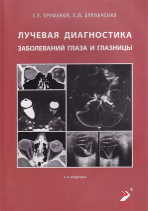 Лучевая диагностика заболеваний глаза и глазницы. Конспект лучевого диагноста