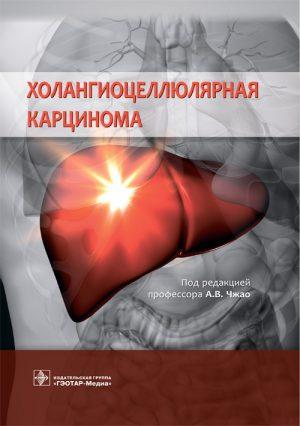 Холангиоцеллюлярная карцинома