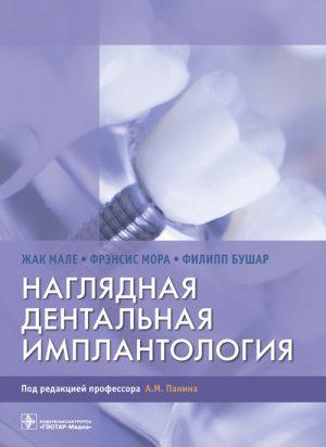 Наглядная дентальная имплантология