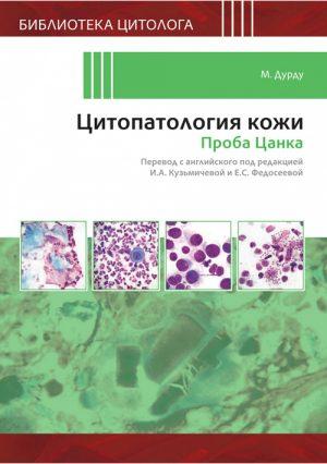 Цитопатология кожи. Проба Цанка. Библиотека цитолога