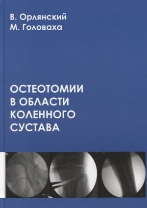 Остеотомии в области коленного сустава