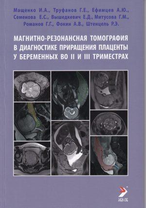 Магнитно-резонансная томография в диагностике приращения плаценты у беременных во II и III триместрах